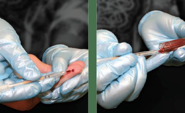 Automated Hematology Analyzer   QBC Star Centrifugal Hematology System
